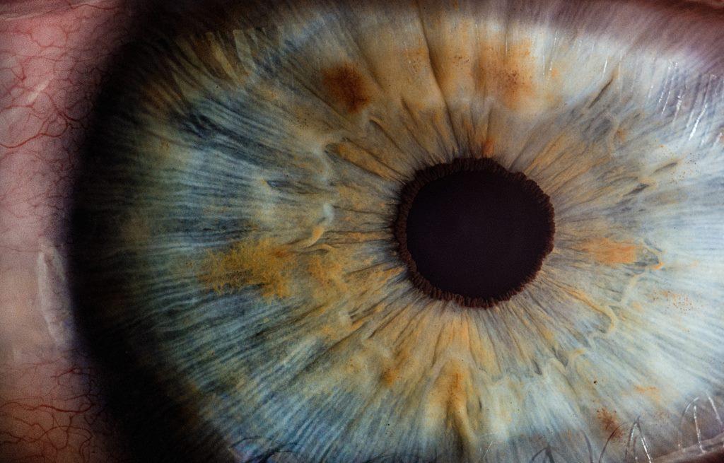 Bild von einem Auge